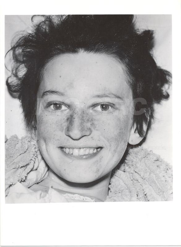 Lupus Erythematosis 1949-1951 002